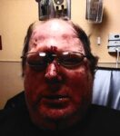 Man Suing Center For Community Resources Following Assault